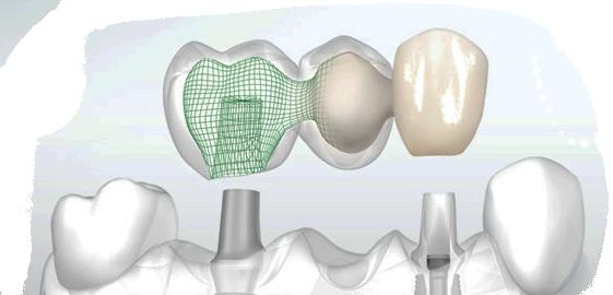 Сколько держать лед при имплантации зубов